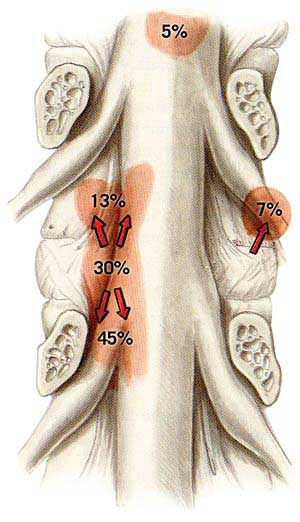 Distribution of Disc Herniations and Their Frequency